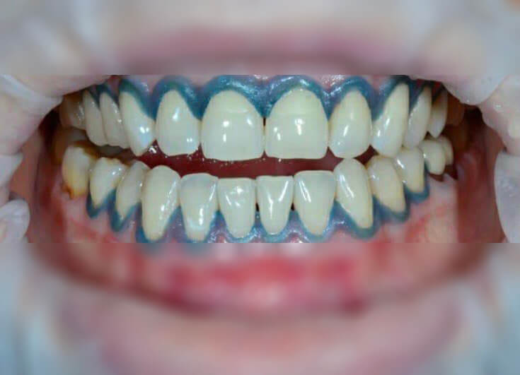 After-Отбеливание зубов Magic Smile