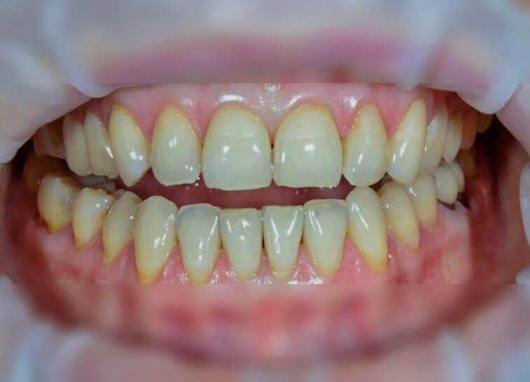 Before-Отбеливание зубов Magic Smile